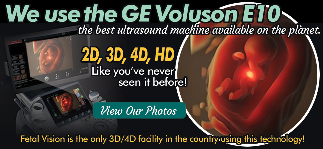 the new ge voluson e10 the most advanced HD ultrasound images and video in the world